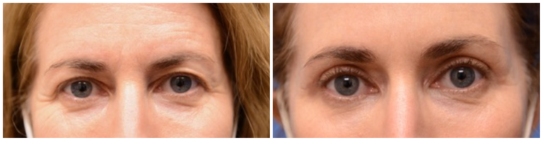 Beverly Hills Eyelid and Forehead Facial Rejuvenation Surgery